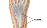 扰人的足底筋膜炎